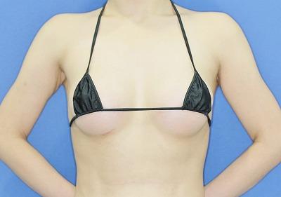 新宿ラクル美容外科クリニック 山本厚志 Motiva(モティバ)エルゴノミクスによる豊胸術 20歳代女性 手術後1ヶ月目