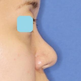 鼻尖軟骨形成(maeda法) 30歳代女性 手術後2ヶ月目