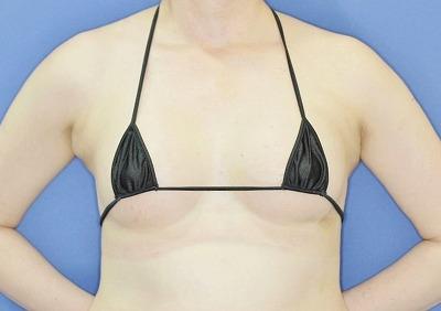 新宿ラクル美容外科クリニック 「Motiva(モティバ)エルゴノミクスによる豊胸術」 40代女性 手術後1週間目