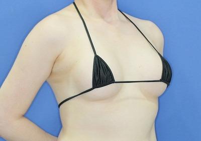 新宿ラクル美容外科クリニック 「Motiva(モティバ)エルゴノミクスによる豊胸術」 40代女性 手術後3ヶ月目