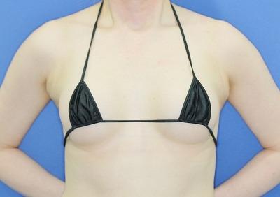 新宿ラクル美容外科クリニック 「Motiva(モティバ)エルゴノミクスによる豊胸術」 40代女性 手術後6ヶ月目