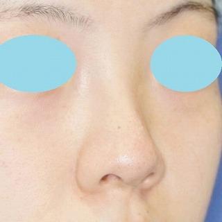 新宿ラクル美容外科クリニック「n-COG Y-ko(ワイコ)」 20代女性 手術後1ヶ月目