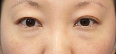 新宿ラクル美容外科クリニック 山本厚志 切らない目の下のたるみ取りOP+リデンシティⅡ 30代女性  術前の症例 正面