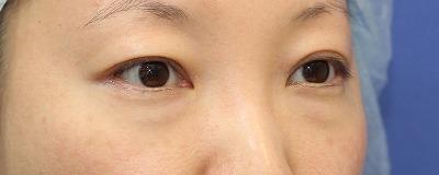 新宿ラクル美容外科クリニック 山本厚志 切らない目の下のたるみ取りOP+リデンシティⅡ 30代女性  術前の症例 斜め