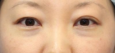 新宿ラクル美容外科クリニック 山本厚志 切らない目の下のたるみ取りOP+リデンシティⅡ 30代女性  手術直後の症例 正面