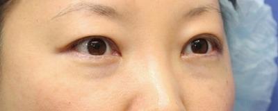 新宿ラクル美容外科クリニック 山本厚志 切らない目の下のたるみ取りOP+リデンシティⅡ 30代女性  手術直後の症例 斜め