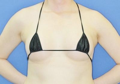 新宿ラクル美容外科クリニック 「Motiva(モティバ)エルゴノミクスによる豊胸術」 40代女性 手術後1ヶ月目