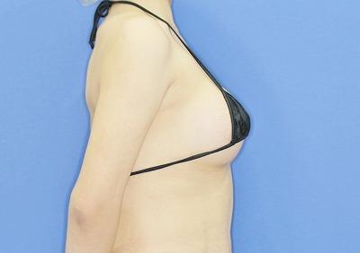 新宿ラクル美容外科クリニック 山本厚志 Motiva(モティバ)エルゴノミクスによる豊胸術 20歳代女性 手術後2か月目