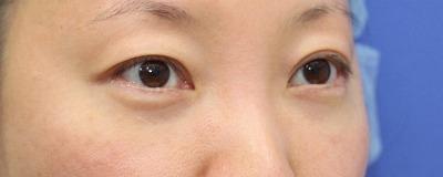 新宿ラクル美容外科クリニック 山本厚志 切らない目の下のたるみ取り+リデンシティⅡ 30代女性  手術後3ヶ月目