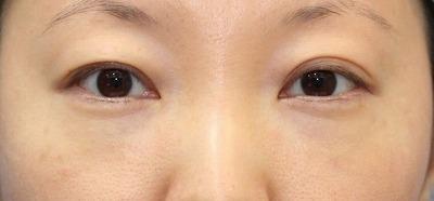 新宿ラクル美容外科クリニック 山本厚志 切らない目の下のたるみ取りOP+リデンシティⅡ 30代女性  手術後1週間目の症例 正面
