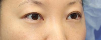 新宿ラクル美容外科クリニック 山本厚志 切らない目の下のたるみ取りOP+リデンシティⅡ 30代女性  手術後1週間目の症例 斜め