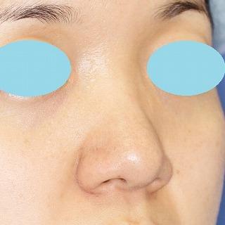 鼻尖軟骨形成(maeda法) 30歳代女性 手術前