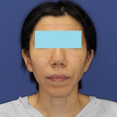 ナチュラルフェイスリフト+ミントリフトⅡminiS flex(シークレットリフト)40代女性 手術前