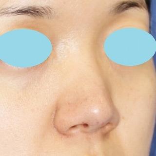鼻尖軟骨形成(maeda法) 30歳代女性 手術直後