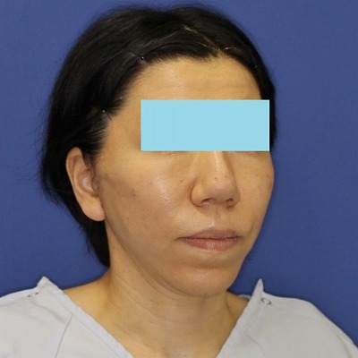 ナチュラルフェイスリフト+ミントリフトⅡminiS flex(シークレットリフト)40代女性 手術直後