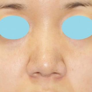 鼻尖軟骨形成(maeda法) 30歳代女性 手術後3ヶ月目
