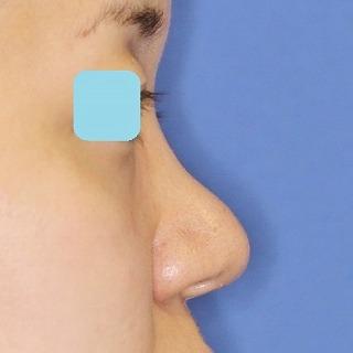 鼻尖軟骨形成(maeda法) 30歳代女性 手術後1週間目