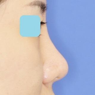 鼻プロテーゼ隆鼻術+鼻尖縮小(close法)+耳介軟骨移植 20歳代女性 手術後1ヶ月目