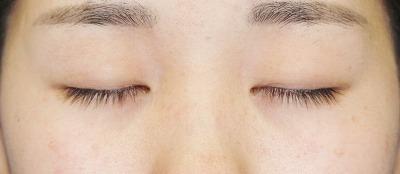 「目尻切開+エクセレントアイ(埋没法二重術)(両6点)」 20歳代女性 手術前