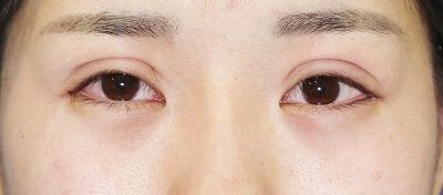 「目尻切開+エクセレントアイ(埋没法二重術)(両6点)」 20歳代女性 手術直後