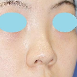 新宿ラクル美容外科クリニック「n-COG Y-ko(ワイコ)」 20代女性 手術前