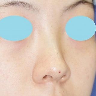 新宿ラクル美容外科クリニック「n-COG Y-ko(ワイコ)」 20代女性 手術直後