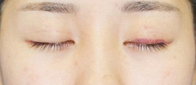 「目尻切開+エクセレントアイ(埋没法二重術)(両6点)」 20歳代女性 手術後1週間目