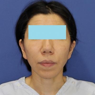 ナチュラルフェイスリフト+ミントリフトⅡminiS flex(シークレットリフト)40代女性 手術後1週間目