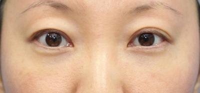 新宿ラクル美容外科クリニック 山本厚志 切らない目の下のたるみ取りOP+リデンシティⅡ 30代女性  手術後1ヶ月目の症例 正面