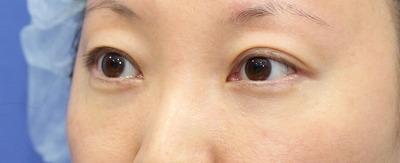 新宿ラクル美容外科クリニック 山本厚志 切らない目の下のたるみ取りOP+リデンシティⅡ 30代女性  手術後1ヶ月目の症例 斜め