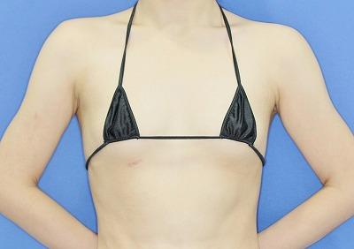 Motiva(モティバ)エルゴノミクスによる豊胸術 20歳代女性 手術前