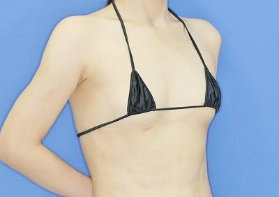 新宿ラクル美容外科クリニック 山本厚志 Motiva(モティバ)エルゴノミクスによる豊胸術 20歳代女性 手術前