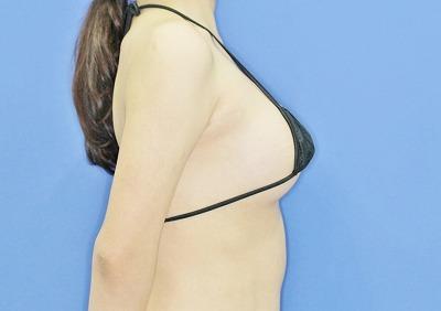 新宿ラクル美容外科クリニック 山本厚志 Motiva(モティバ)エルゴノミクスによる豊胸術 20歳代女性 手術直後