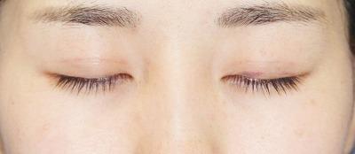 「目尻切開+エクセレントアイ(埋没法二重術)(両6点)」 20歳代女性 手術後2週間目
