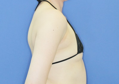 新宿ラクル美容外科クリニック 「Motiva(モティバ)エルゴノミクスによる豊胸術」 40代女性 手術前