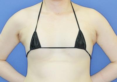 新宿ラクル美容外科クリニック 「Motiva(モティバ)エルゴノミクスによる豊胸術」 40代女性 手術直後