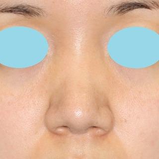 鼻尖軟骨形成(maeda法) 30歳代女性 手術後1ヶ月目