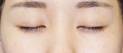 「目尻切開+エクセレントアイ(埋没法二重術)(両6点)」 20歳代女性 手術後3ヶ月目