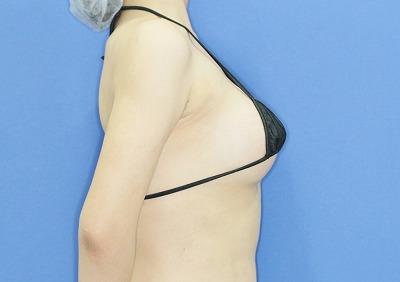 新宿ラクル美容外科クリニック 山本厚志 Motiva(モティバ)エルゴノミクスによる豊胸術 20歳代女性 手術後1週間目