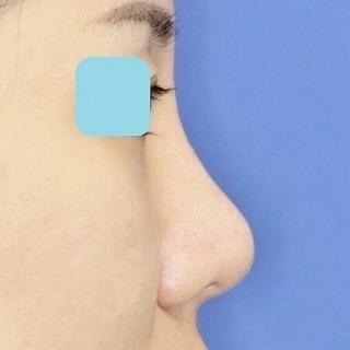鼻プロテーゼ隆鼻術+鼻尖縮小(close法)+耳介軟骨移植 20歳代女性 手術後2ヶ月目