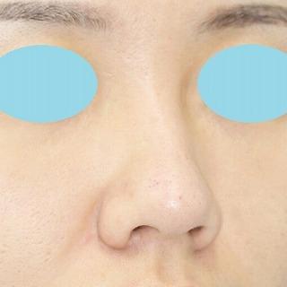 鼻プロテーゼ隆鼻術+鼻尖縮小(close法)+耳介軟骨移植 20歳代女性 手術前
