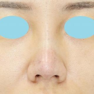 鼻プロテーゼ隆鼻術+鼻尖縮小(close法)+耳介軟骨移植 20歳代女性 手術直後