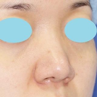 鼻尖軟骨形成(maeda法) 30歳代女性 手術後6ヶ月目
