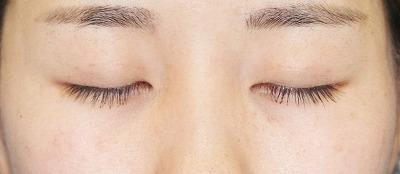 「目尻切開+エクセレントアイ(埋没法二重術)(両6点)」 20歳代女性 手術後1ヶ月目