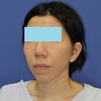 ナチュラルフェイスリフト+ミントリフトⅡminiS flex(シークレットリフト)40代女性 手術後1ヶ月目
