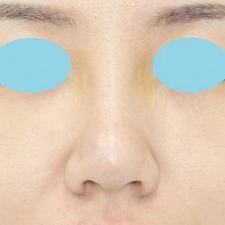 鼻プロテーゼ隆鼻術+鼻尖縮小(close法)+耳介軟骨移植 20歳代女性 手術後1週間目