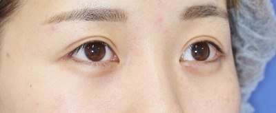 「目尻切開+エクセレントアイ(埋没法二重術)(両6点)」 20歳代女性 手術後6ヶ月目