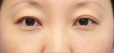 新宿ラクル美容外科クリニック 山本厚志 切らない目の下のたるみ取りOP+リデンシティⅡ 30代女性  手術後2ヶ月目の症例 正面