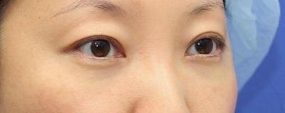 新宿ラクル美容外科クリニック 山本厚志 切らない目の下のたるみ取りOP+リデンシティⅡ 30代女性  手術後2ヶ月目の症例 斜め