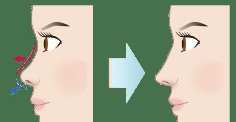 新宿ラクル美容外科クリニック「n-COG Y-ko(ワイコ)」